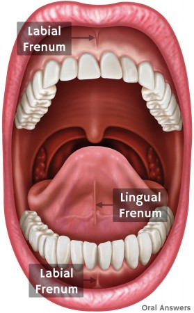 Lingual Frenum and Labial Frenum