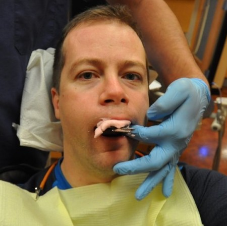 Taking an Alginate Dental Impression - Photo Courtesy of SuperWebDeveloper