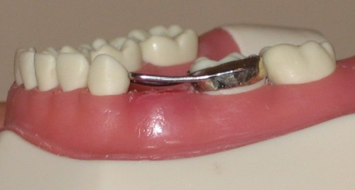 A Dental Space Maintainer - Spacer