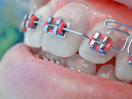 Rubber Bands on Braces