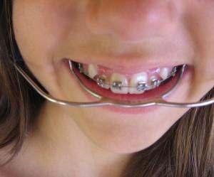 Dental Headgear