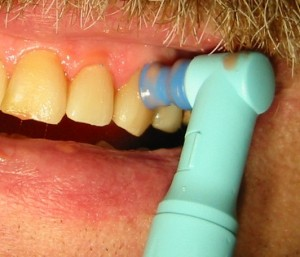 Dental Tooth Polishing - Photo Courtesy of Wsiegmund