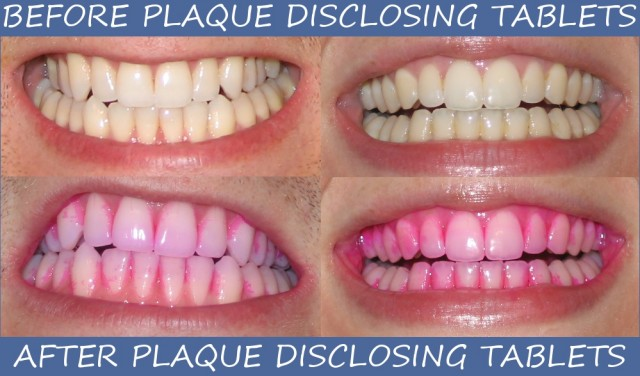 Seeing the Dental Plaque on Our Teeth