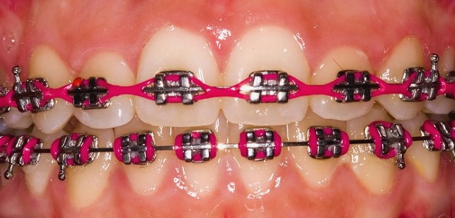 Colored Braces Single Tooth or All The Teeth
