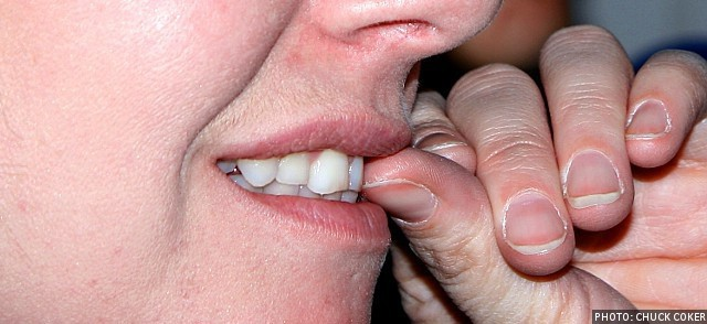 Nail Biting Can Harm Your Teeth