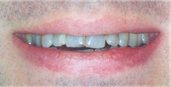 Tetracycline Teeth Staining