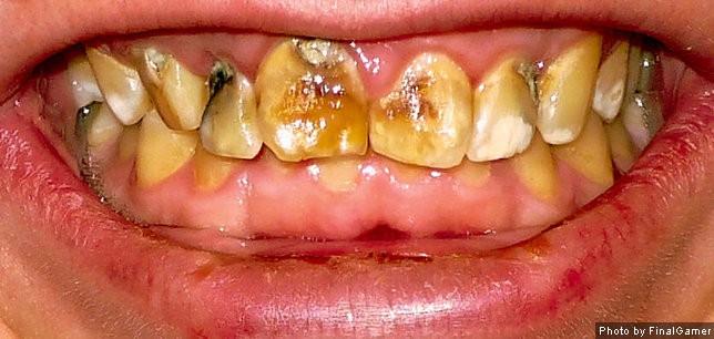 Severe Dental Fluorosis