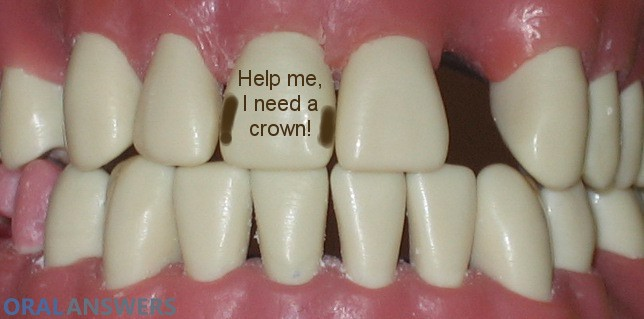 Dental Crown Tooth Before Being Prepared for Crown