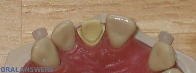 Dental Crown Tooth Prepared Tongue Side View