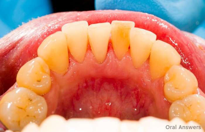 Dental Tartar and Calculus After Dental Cleaning