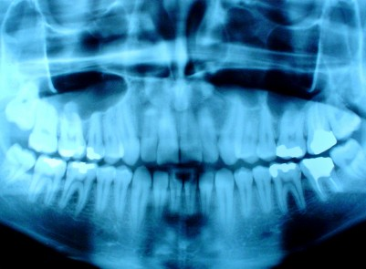 Dental Panoramic X-Ray
