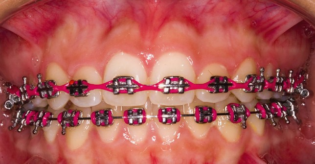 Labial Frenectomy After Braces