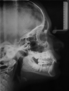 Lateral Cephalometic X-Ray