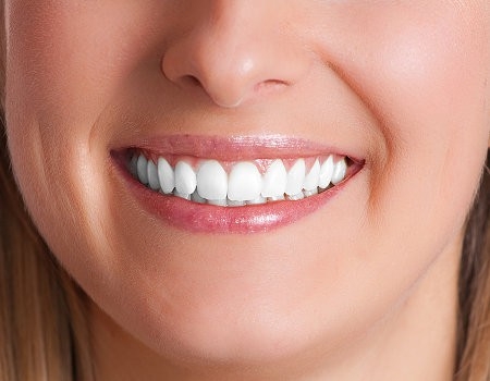 Teeth Whitening or Bleaching?