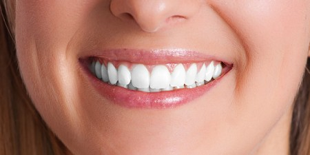 Teeth Whitening Side Effects