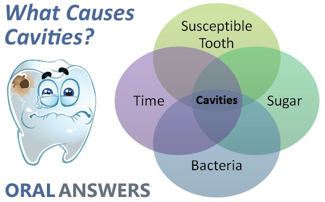 4 Causes of Cavities & Tooth Decay