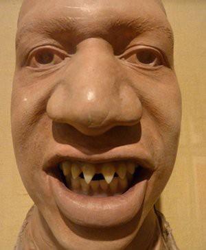 Pointed Teeth Bantu Indian Tribe