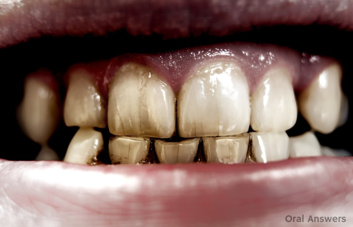 Craze Lines Appearing on Stained Teeth