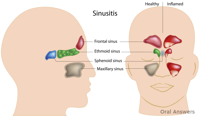 How Sinusitis Can Cause a Toothache