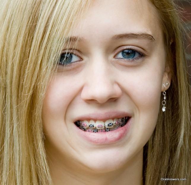 braces_blond_teenager_black_pink_bands