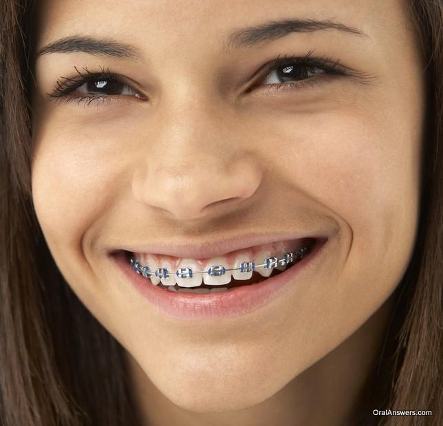 braces_dark_blue_colored_bands_teenage_girl