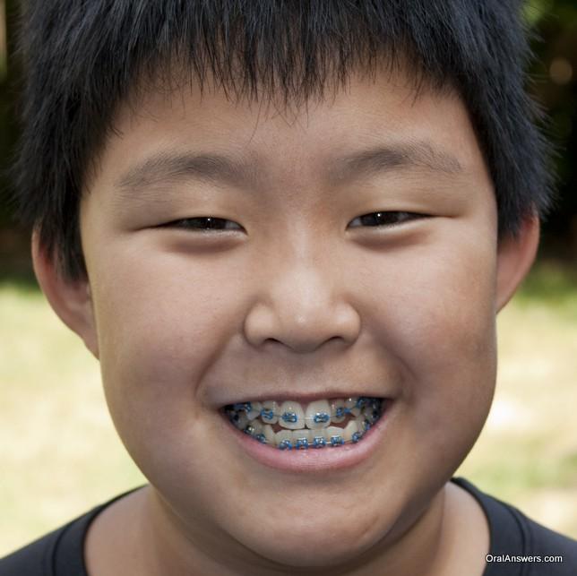braces_teenage_boy_all_blue_bands