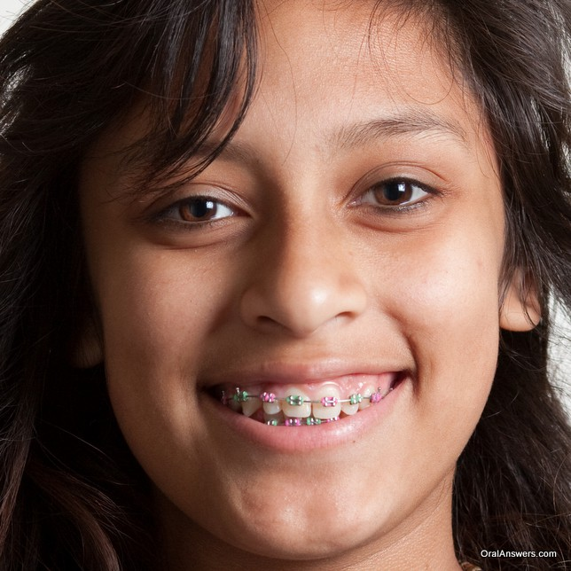braces_teenager_pink_and_green_colored_bands