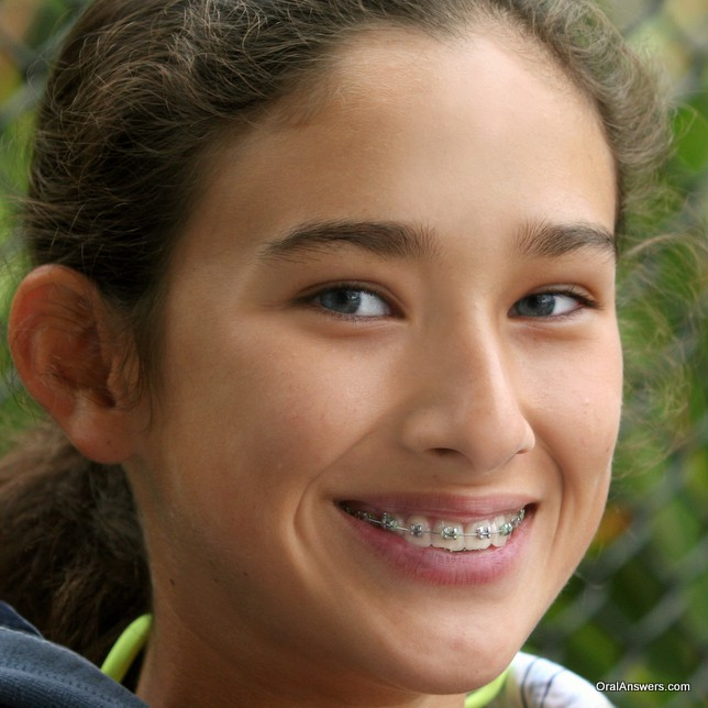 braces_teenager_smiling