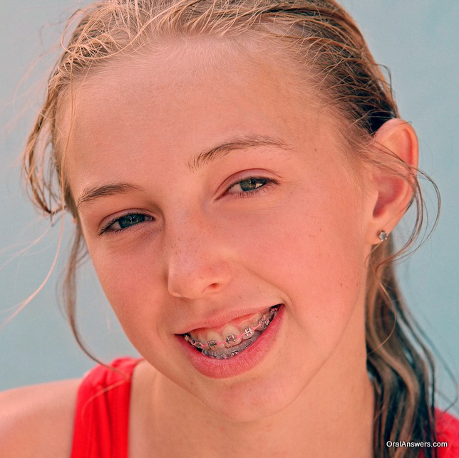 braces_teenager_swimsuit_pink_bands