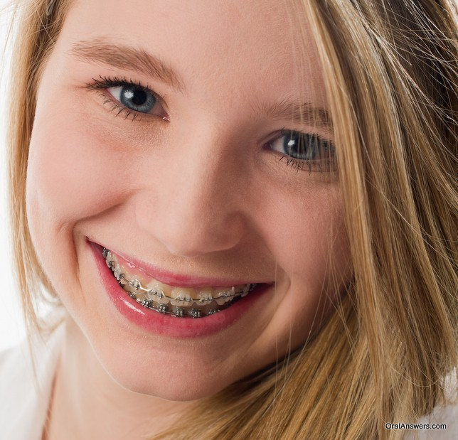 clear_braces_teenage_girl