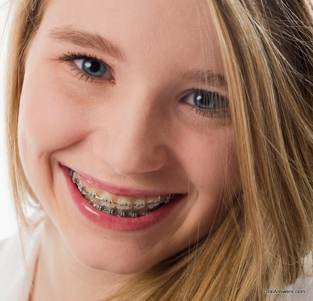 clear_braces_teenage_girl