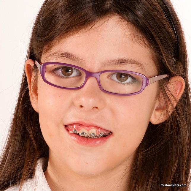 teeange_girl_glasses_braces