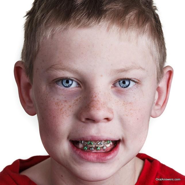 teenage_boy_braces_green_silver_bands