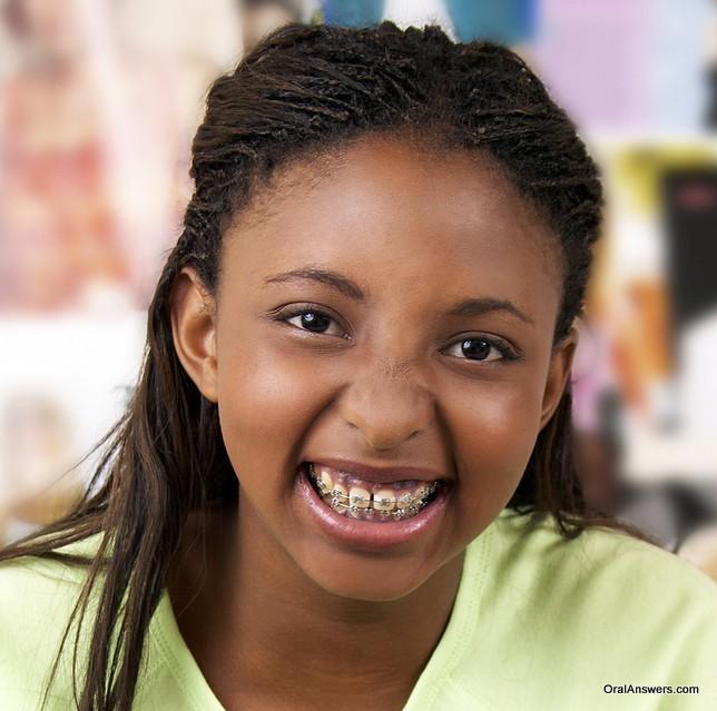 teenage_girl_african_american_braces