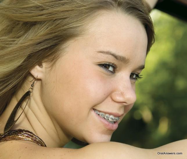 teenage_girl_braces_driving