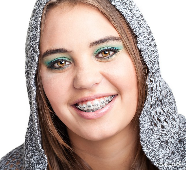 teenage_girl_braces_green_eye_shadow