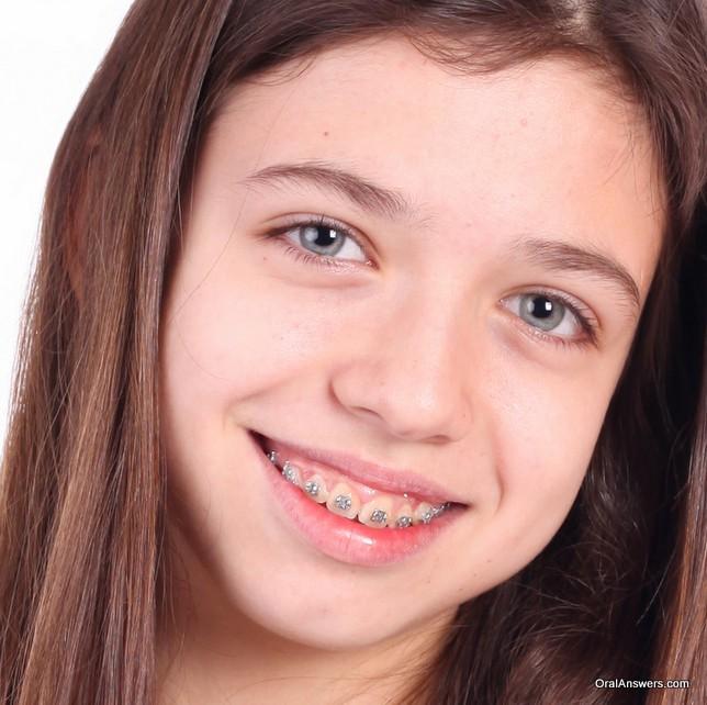 teenage_girl_braces_no_wire