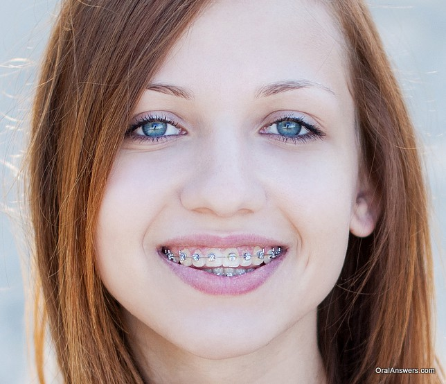 teenage_girl_braces_pretty
