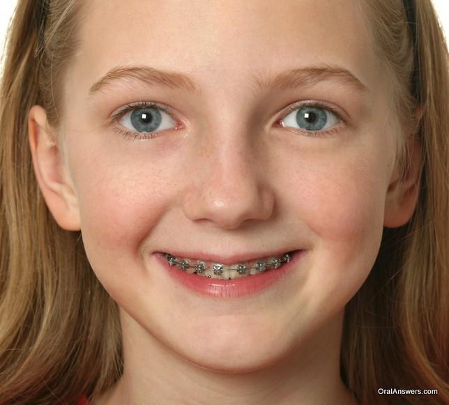 teenage_girl_silver_braces