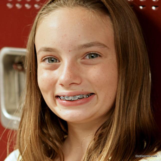 teenager_braces_at_school