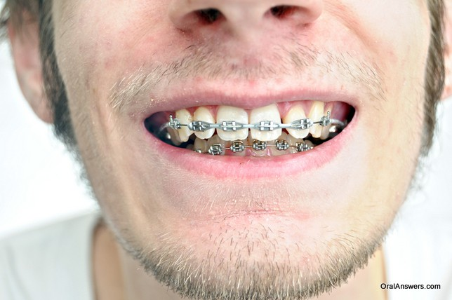 teenager_braces_gray_bands