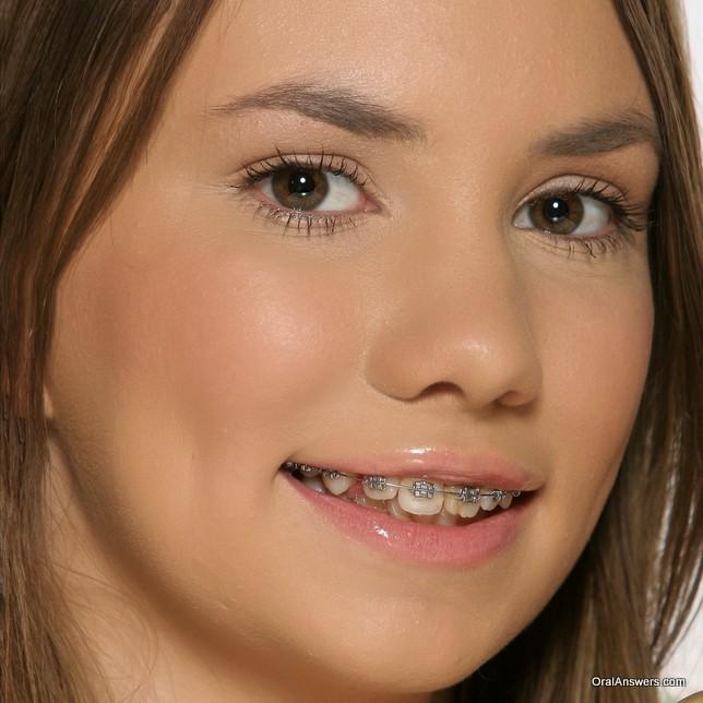 teenager_damon_braces