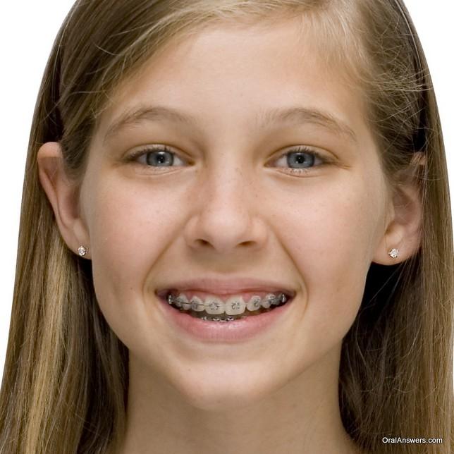teenager_sandy_blond_damon_braces