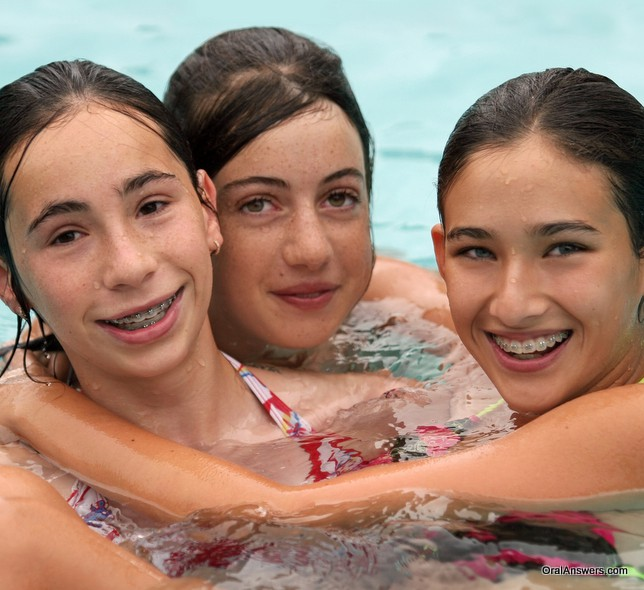 two_teenagers_swimming_with_braces