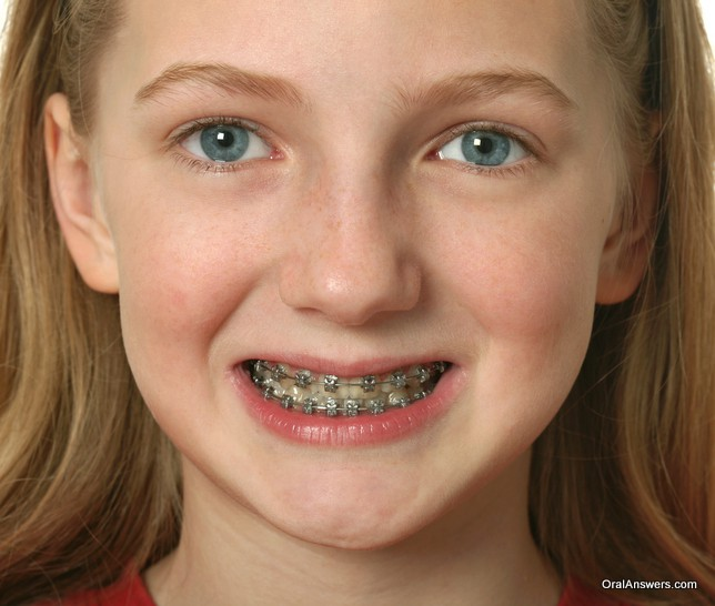 young_girl_braces_showing_upper_and_lower_teeth