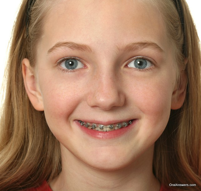 young_girl_braces_smiling