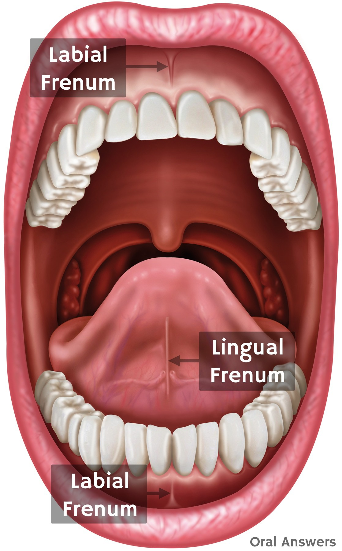 What A Frenectomy Is And Why Your Child Might Need One Oral Answers