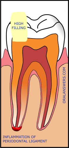 Pain caused by a high filling why it happens and how to fix it a tooth with symptomatic apical periodontitis due to a high filling solutioingenieria Choice Image