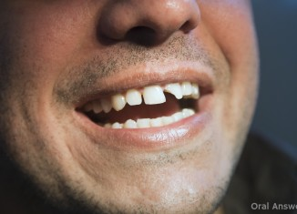 Chipped Tooth Fixed Filling