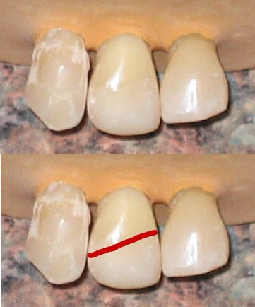 How a chipped tooth can be repaired with a white composite filling how a chipped tooth can be repaired with a white composite filling solutioingenieria Images